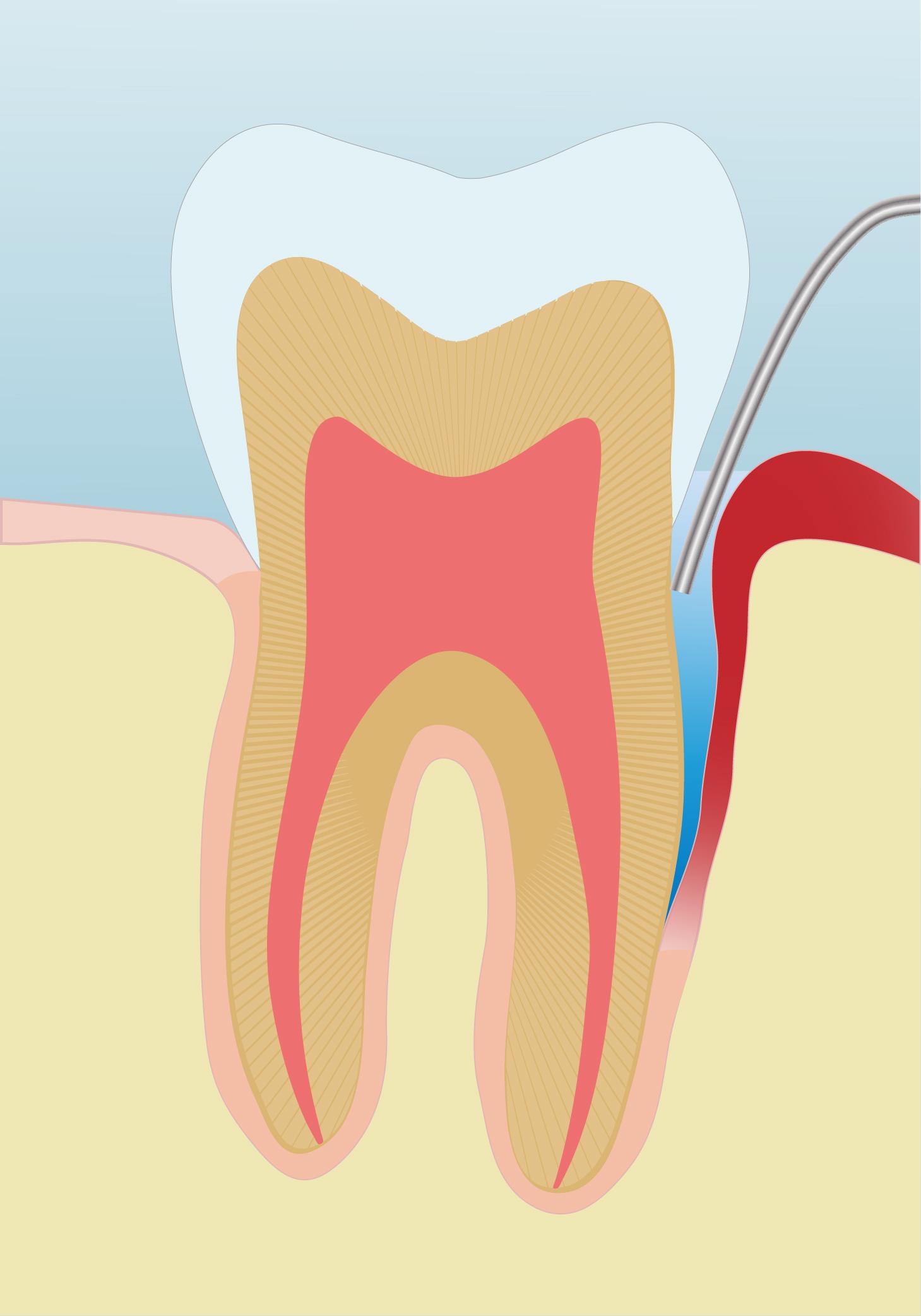 картинки пульпита зуба тонкими